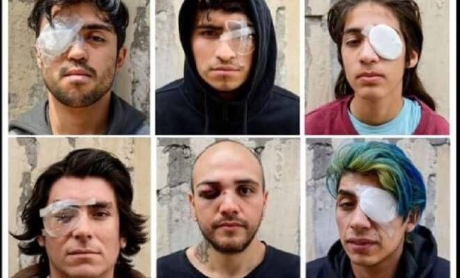 Mutila policía chilena a manifestantes como hacen invasores de Israel en Palestina - todotexcoco.com
